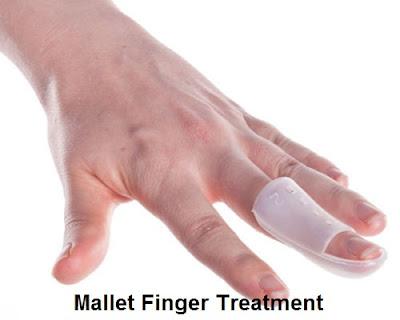 Mallet Finger Splint - Treatment