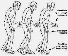 Cara Cepat Mengobati Penyakit Parkinson Dengan Obat Alami