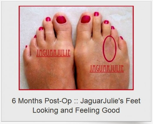 mortons neuroma six months post op jaguarjulie right foot