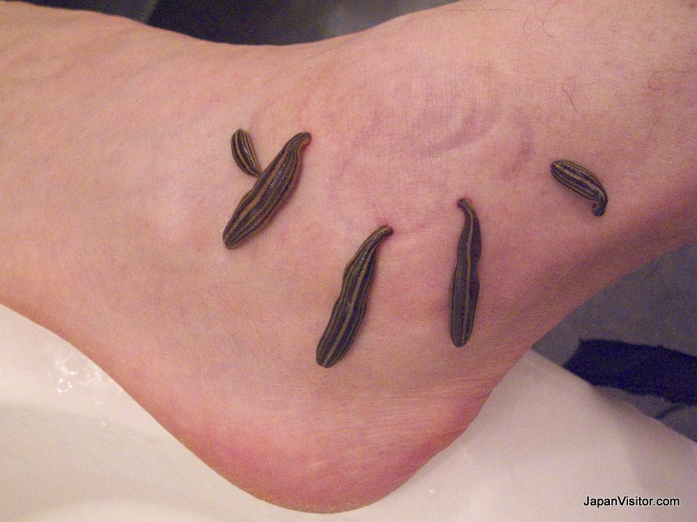 All five leeches attached to my ankle, Tokyo, Japan.