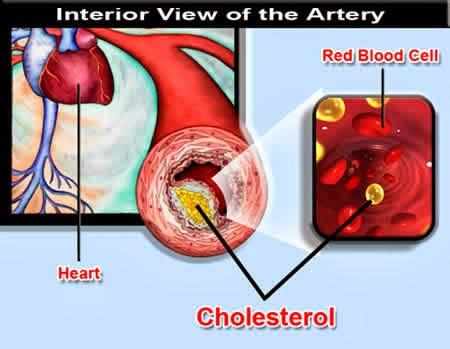 masalah kolesterol