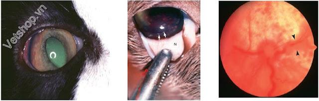 Hình 3: viêm mống mắt, mống mắt trở thành màu nâu.