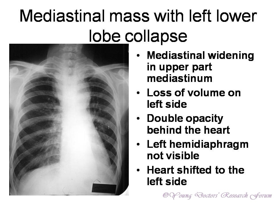 ... heart Left ... Left Lung Collapse Tumors Not Visible