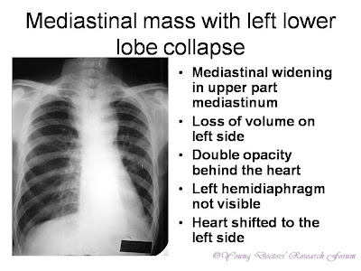 Mediastinal widening in upper part mediastinum Loss of volume on left side Double opacity behind the heart Left hemidiaphragm not visible Heart shifted to the left side