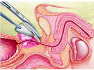 Penderita kanker prostat sudah tentu menginginkan sembuh dari penyakit yang di deritanya BLOG PAGE ONE GOOGLE | PENGOBATAN KANKER PROSTAT