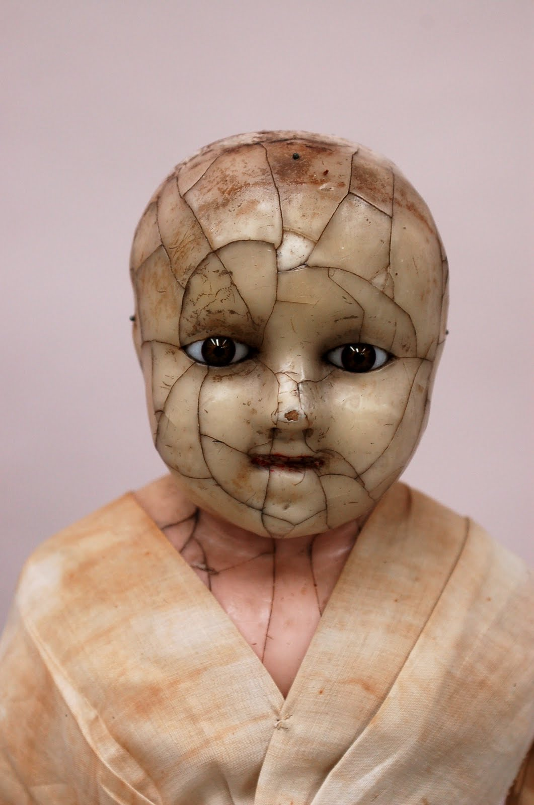 Shelburne Museum Blog: The Bazzoni Doll Goes to the Hospital #765557