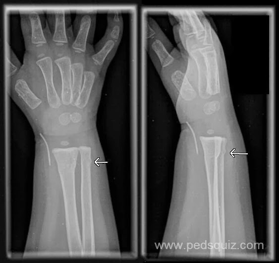 What is a buckle fracture of the wrist?