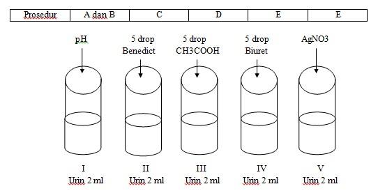Contoh Laporan Praktikum Uji Urine Ilman Z Blog