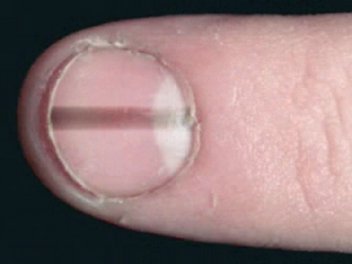 Fingernails and Thyroid Disease http://weihomemagazine.blogspot.com/2012/07/9-nail-colors-indicate-that-you-are.html