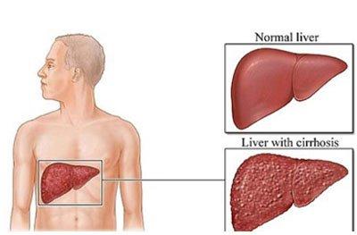 Obat Herbal Sirosis Hati