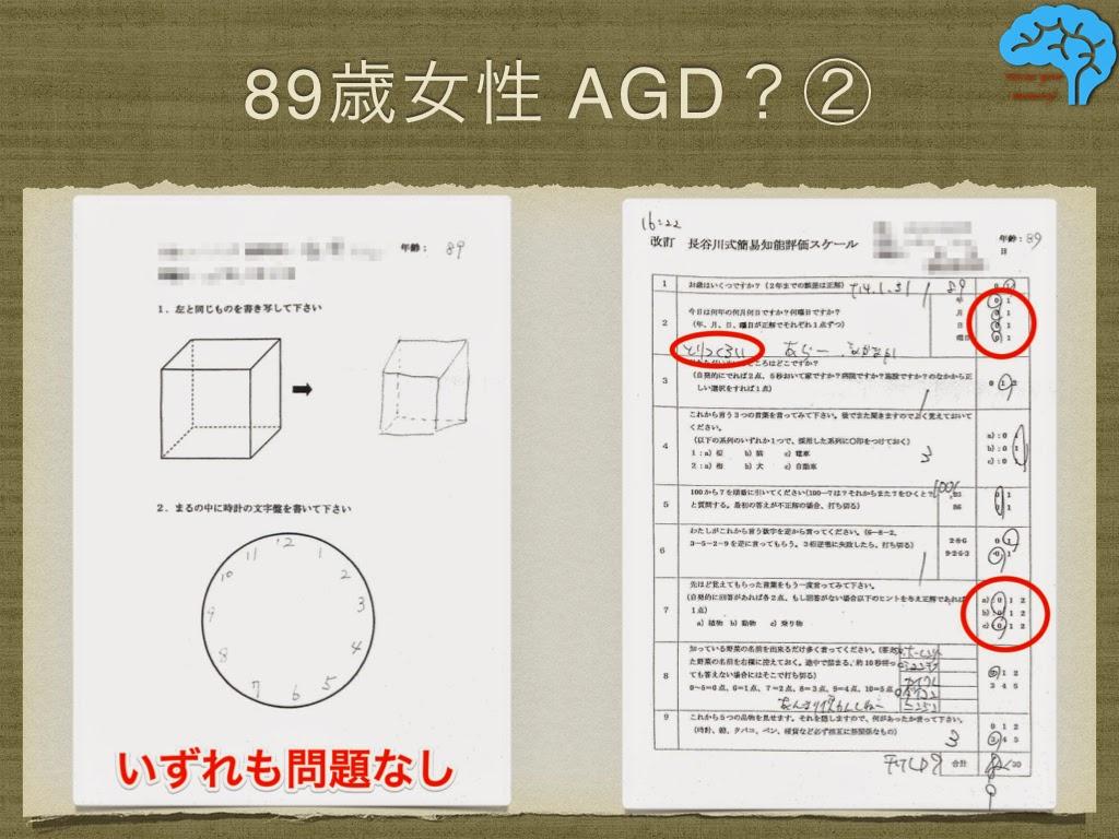AGD 時計描画 長谷川式テスト