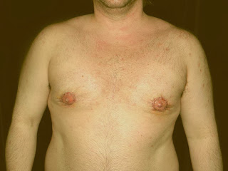 gynecomastia severe two stage procedure