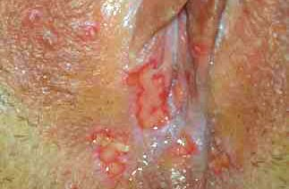 the signs of genital herpes   Herpes Advicer Early Stages of Herpes Pictures