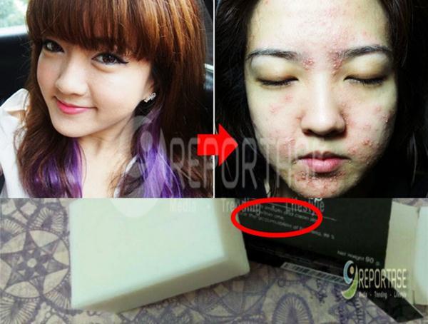 Waspada..! Beredar Online Sabun Pemutih Kulit Berbahaya, jangan Gunakan kosmetik/sabun Berbahan Ini