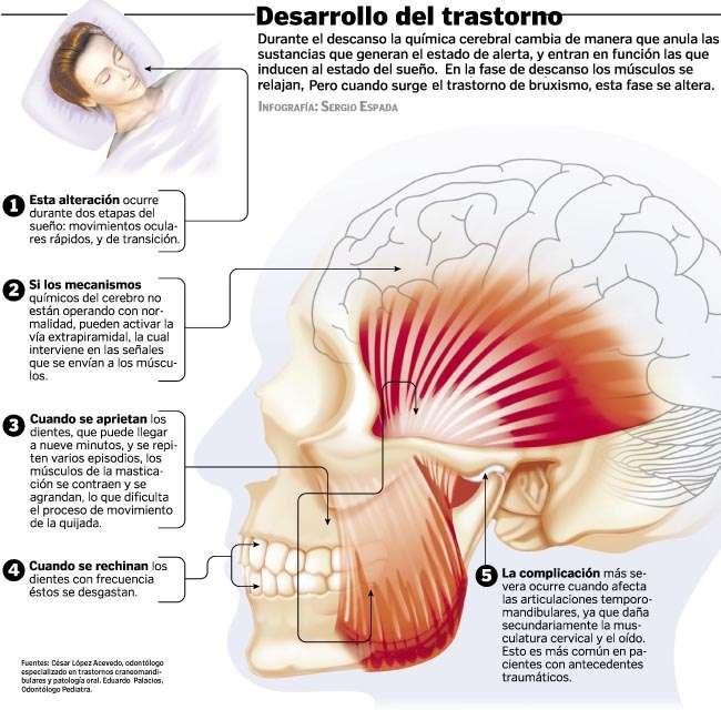 El efecto de los ejercicios a la osteocondrosis