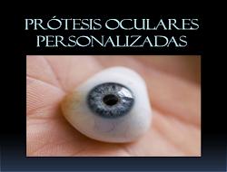Adaptación de prótesis oculares.