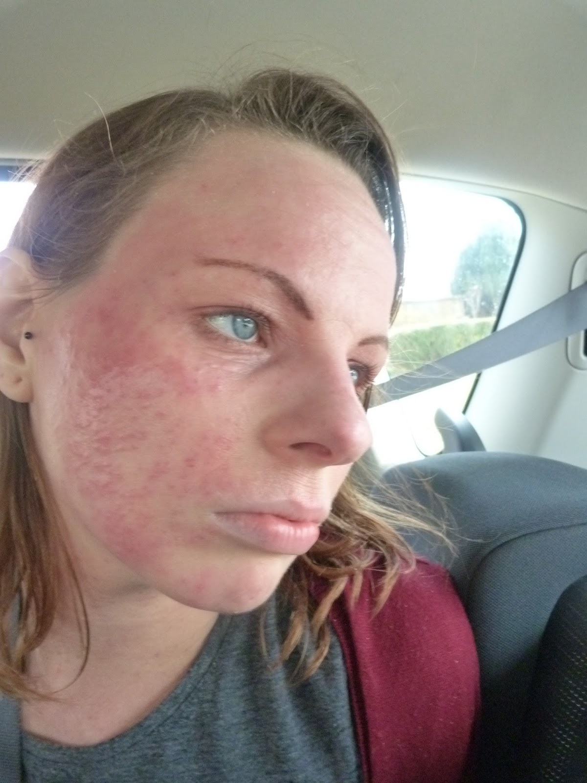 face rash steroid cream