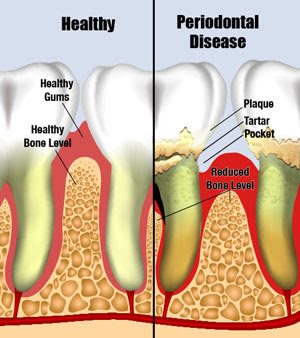 Periodontal Disease Gum