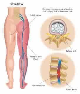 Ischialgia Sciatica Disease