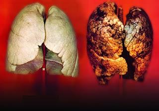 10 Gejala Kanker Paru-Paru yang Tak Boleh Anda Abaikan
