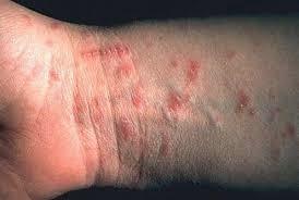 Sarna-síntomas