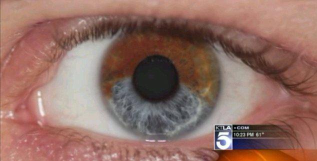 les lentilles de contact avec l augmentation de la