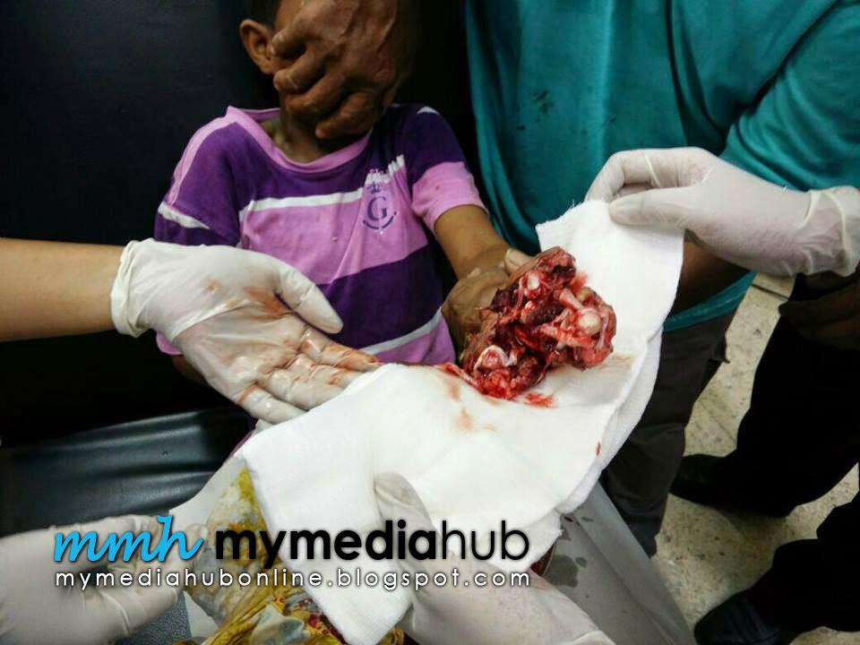 4 Gambar Tangan Budak 9 tahun hancur akibat letupan mercun