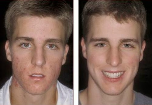 acne-free-skin-care-before-and-after