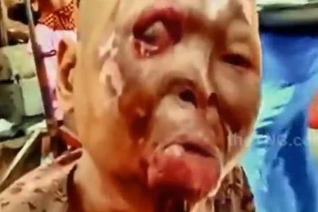 Mujer Desfigurada con Acido