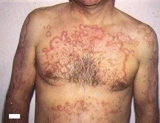 Gejala Penyakit Lupus dan Penyebabnya