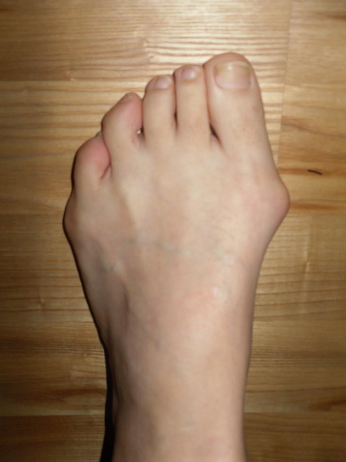 breda fötter operation