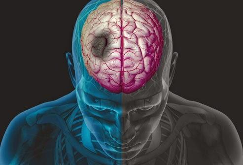 Pertolongan pertama yg di lakukan terhadap orang yg stroke