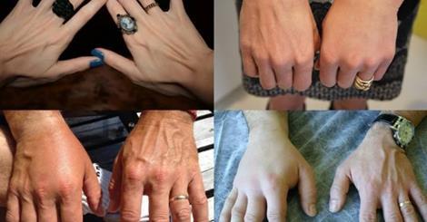خلطة مذهلة لتسمين اليدين و اخفاء العروق بسرعة رهيبة و إلى الأبد