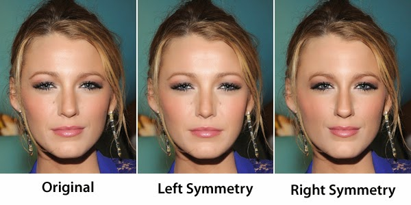 Boston face asymmetry correction without surgery with botox and in my practice i always try to correct asymmetry while doing any procedure at all whether its balancing brows lips chin or jaws solutioingenieria Choice Image