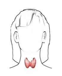Hipertiroidismo en el embarazo
