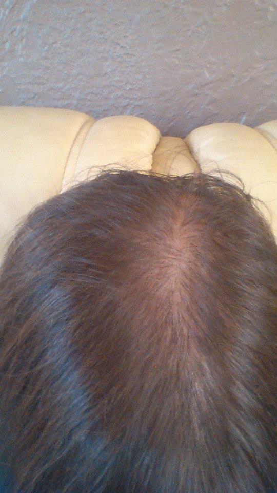 Si on peut rendre la densité des cheveu après la chute des cheveux