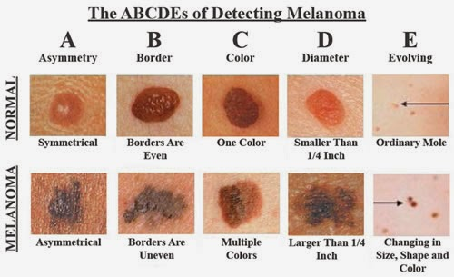 How To Recognize Skin Cancer – This Could Save Your Life!