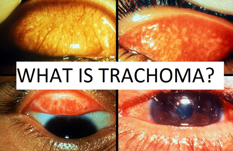 Mbbs Doctors Trachoma Signs And Symptoms Diagnosis