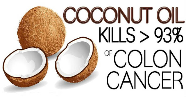 Coconut Oil Kills 93% of Colon Cancer Cells after 2 Days of Treatment