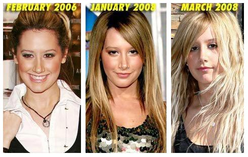 Taking a look at the before and after photos, Ashley's nose is smaller ...