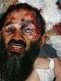 Dead Body Of Osama Bin Laden