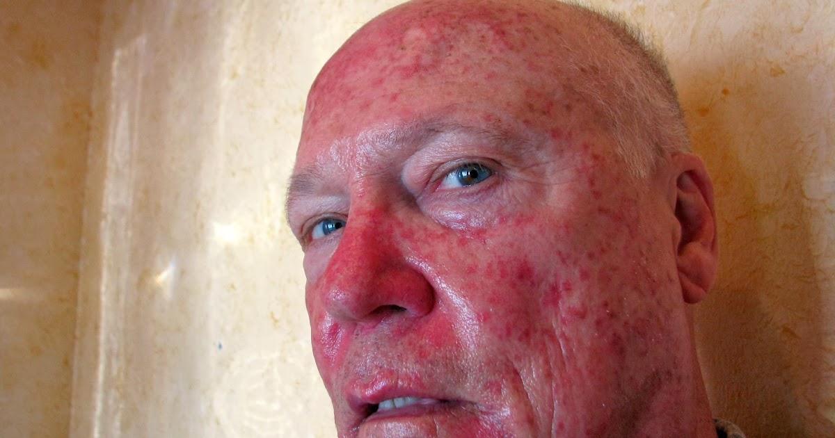 Tomodhabi Virgin Mary Pearl Harbor Skin Cancer Selfie