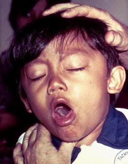 Penyebab batuk, Penyebab batuk berdahak, Penyebab batuk kering