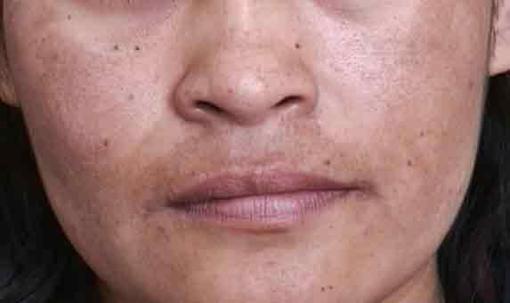 Lugares na cara depois de defloramento