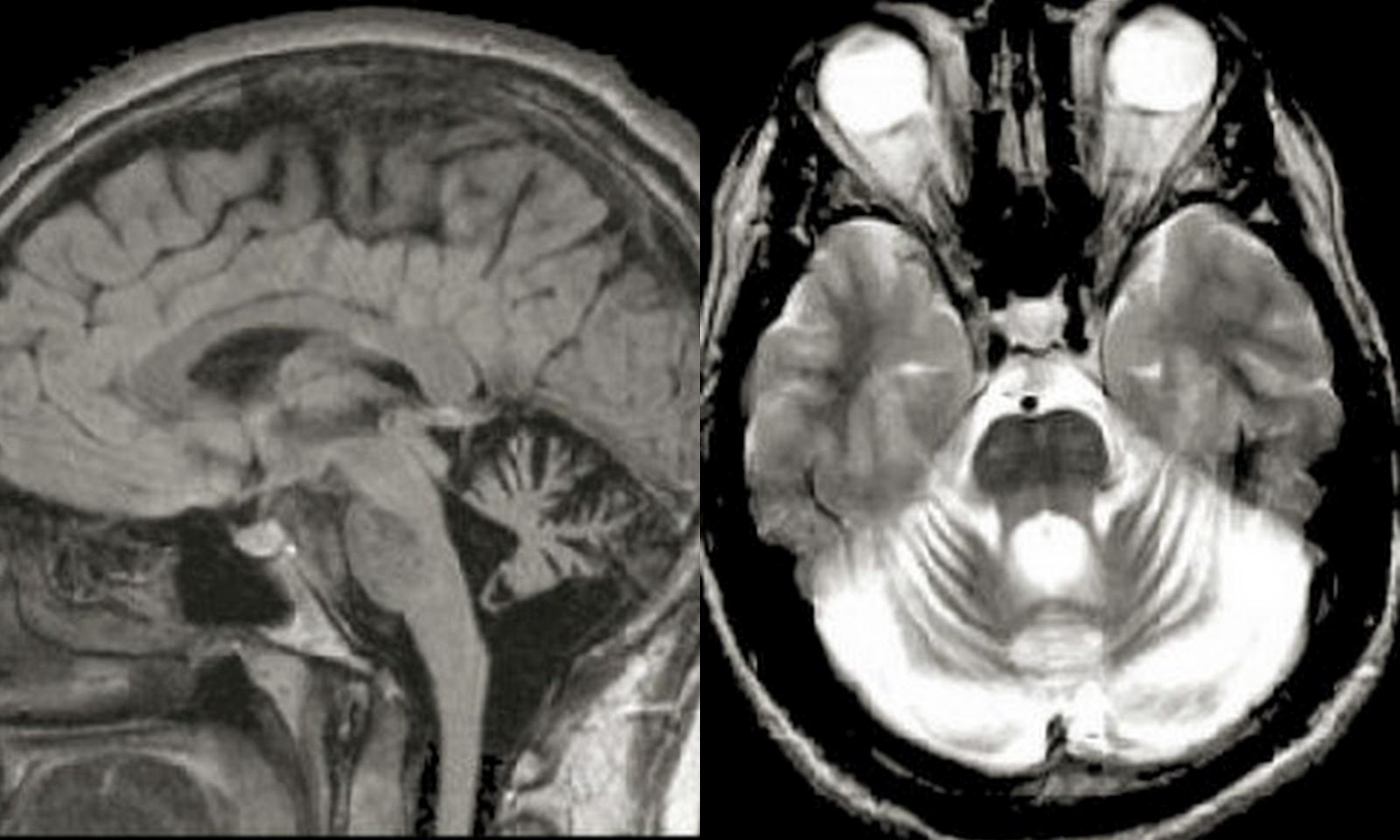 Dr Balaji Anvekar\'s Neuroradiology Cases: Cerebellar Degeneration MRI