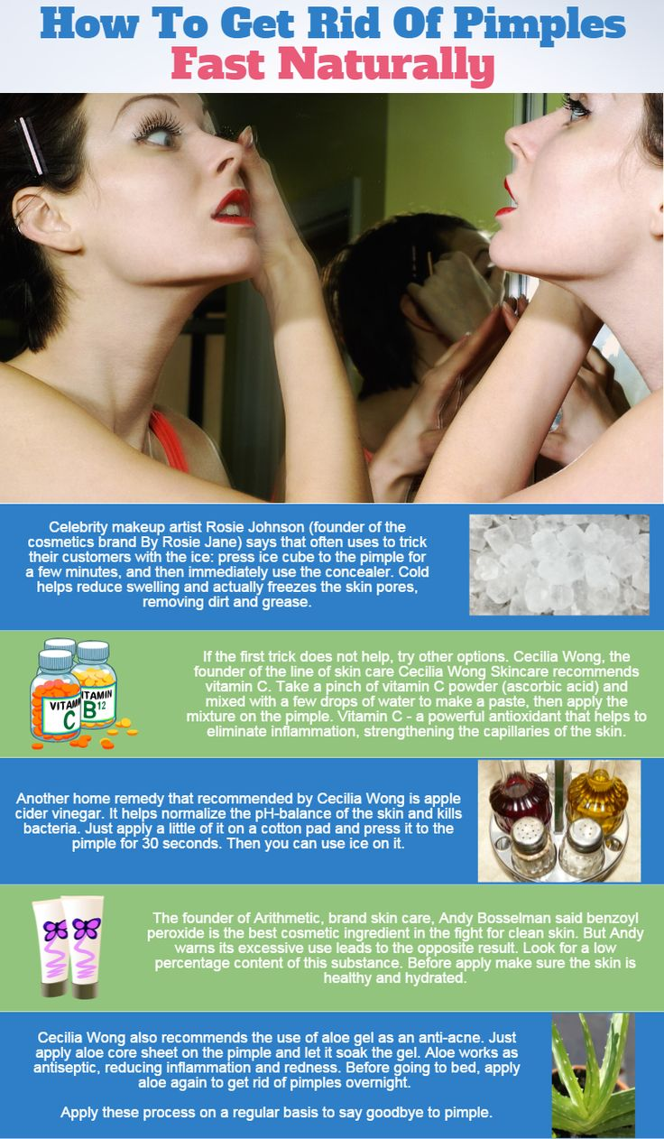 Adult acne home remedy for