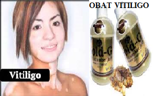 Obat Kulit Tradisional Atasi Vitiligo
