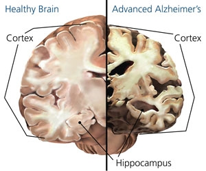 alzheimers disease and research ethical concerns essay View and download alzheimers essays examples your alzheimers essay home and control alzheimer's disease the proposed research intends to fill.