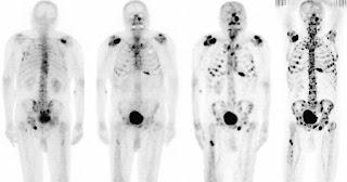 Molecule Central In Spread Of Cancer Found