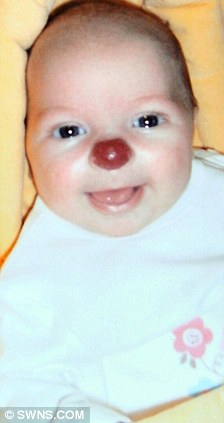 Anak Ini Terlahir dengan Hidung Badut